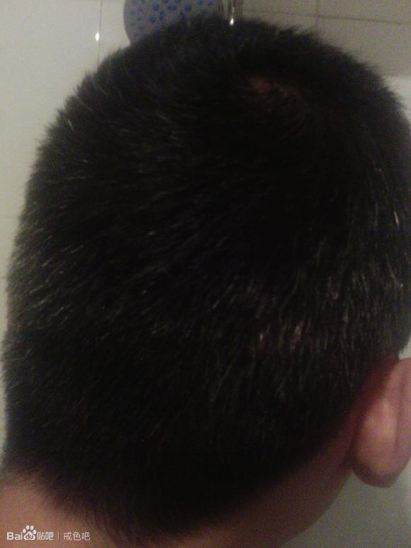 白头发的恢复状况