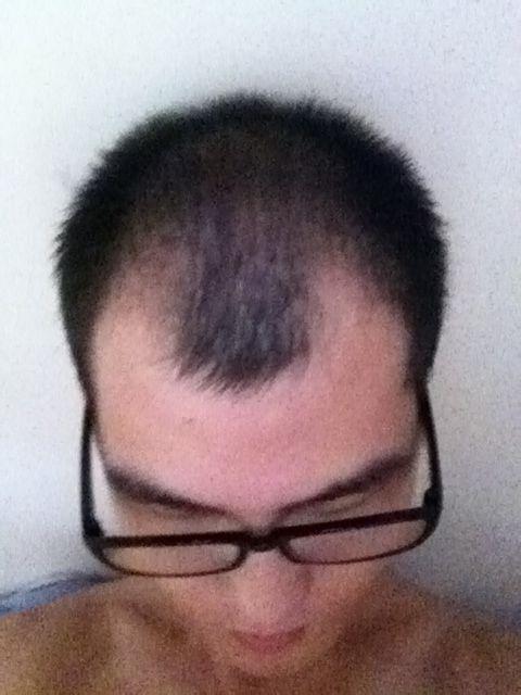 头发恢复历程,戒淫邪是否可以恢复,我来用事实说话