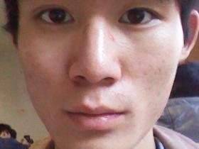 戒色的两个月,收获不小,脸上痘痘是没了